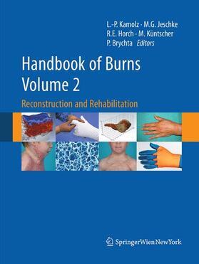Brychta / Horch / Jeschke | Handbook of Burns Volume 2 | Buch | sack.de