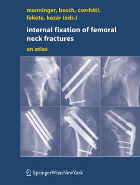 Manninger / Bosch / Cserháti | Internal fixation of femoral neck fractures | Buch | sack.de