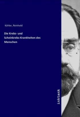 Die Krebs- und Scheinkrebs-Krankheiten des Menschen | Buch | sack.de
