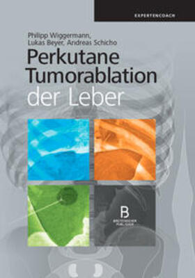 Wiggermann / Beyer / Schicho | Perkutane Tumorablation der Leber | Buch | sack.de