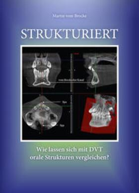 vom Brocke | Strukturiert | Buch | sack.de