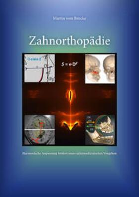 vom Brocke   Zahnorthopädie   Buch   sack.de