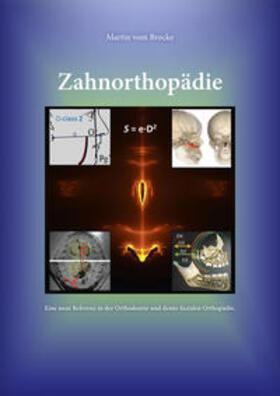 vom Brocke | Zahnorthopädie | Buch | sack.de