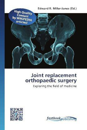 Joint replacement orthopaedic surgery | Buch | sack.de