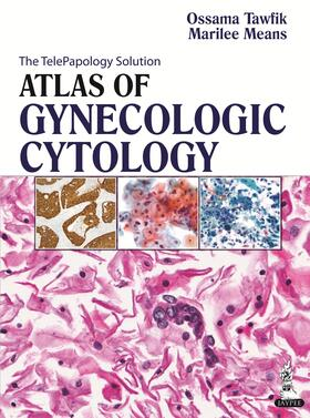 Tawfik / Means | Atlas of Gynecologic Cytology | Buch | sack.de
