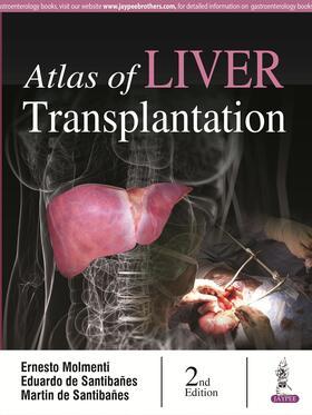 Molmenti / Santibañes / Santibañes | Atlas of Liver Transplantation | Buch | sack.de