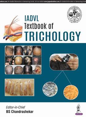 Chandrashekar | IADVL Textbook of Trichology | Buch | sack.de