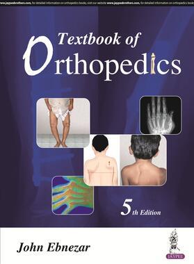 Ebnezar   Textbook of Orthopedics   Buch   sack.de