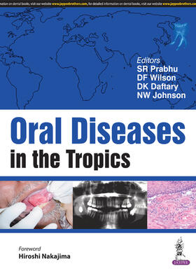 Prabhu / Wilson / Johnson   Oral Diseases in the Tropics   Buch   sack.de